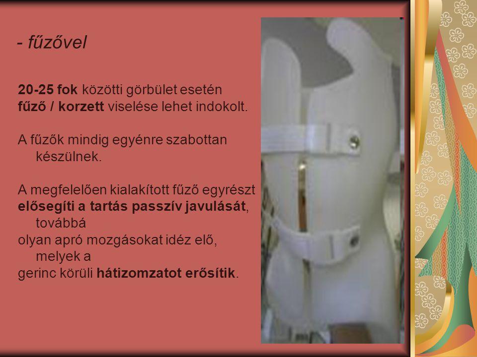 20-25 fok közötti görbület esetén fűző / korzett viselése lehet indokolt.