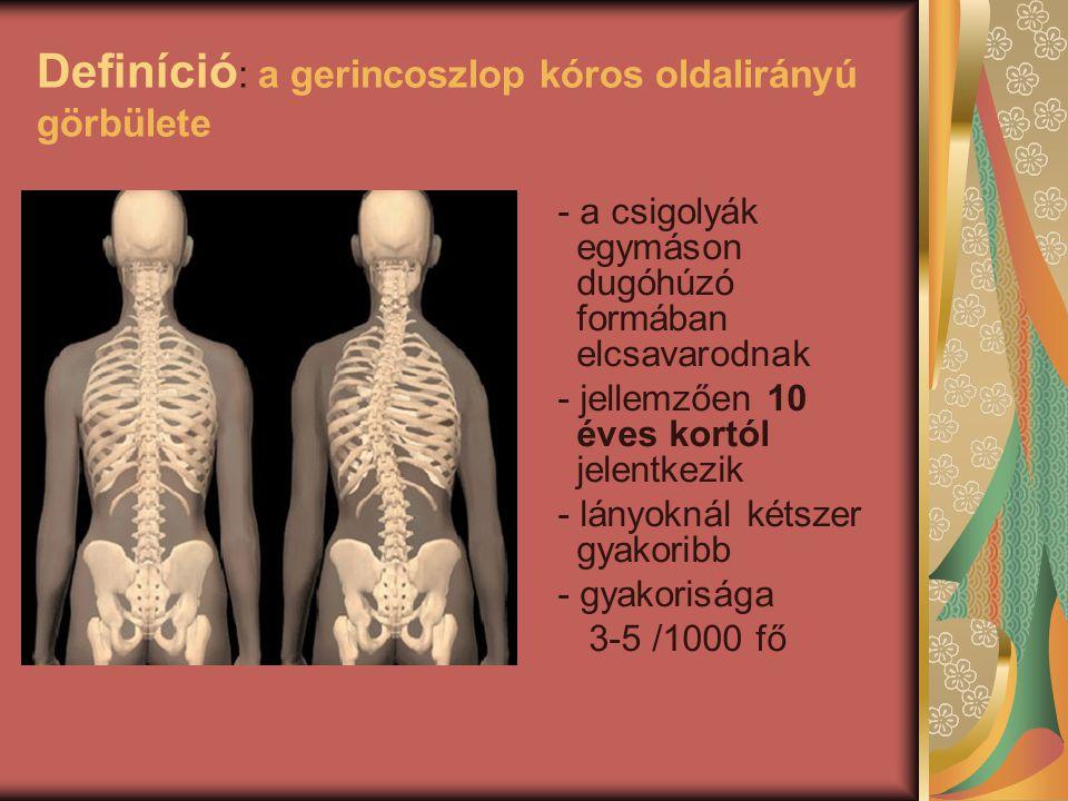 Definíció : a gerincoszlop kóros oldalirányú görbülete - a csigolyák egymáson dugóhúzó formában elcsavarodnak - jellemzően 10 éves kortól jelentkezik - lányoknál kétszer gyakoribb - gyakorisága 3-5 /1000 fő