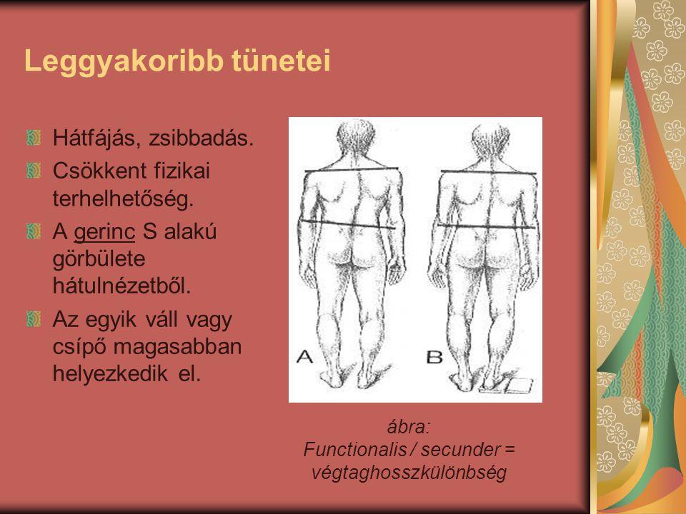 Leggyakoribb tünetei Hátfájás, zsibbadás.Csökkent fizikai terhelhetőség.