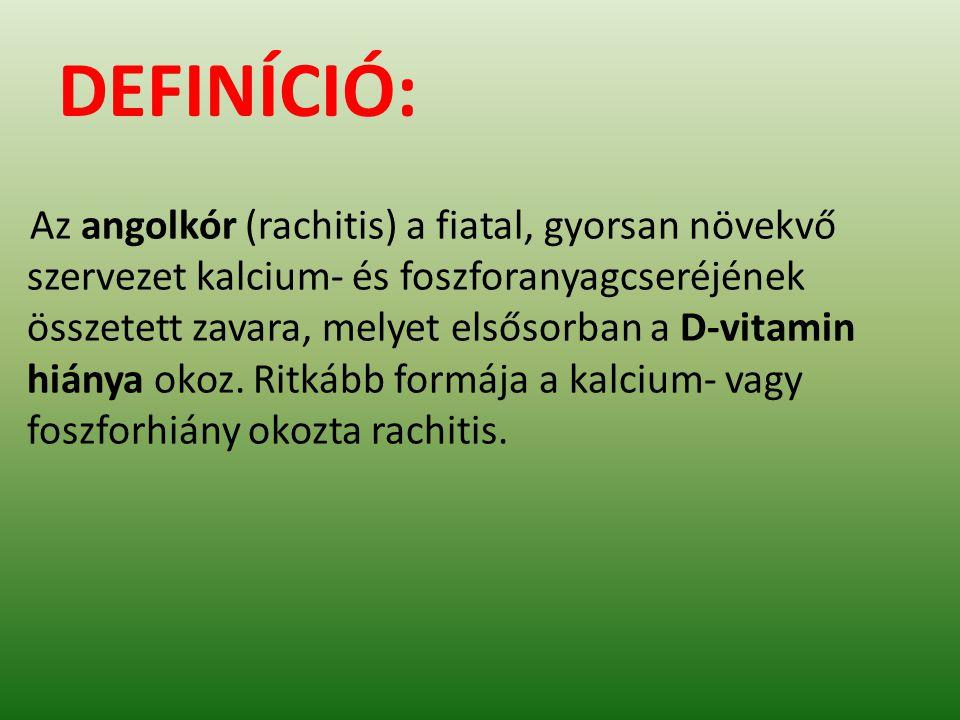 DEFINÍCIÓ: Az angolkór (rachitis) a fiatal, gyorsan növekvő szervezet kalcium- és foszforanyagcseréjének összetett zavara, melyet elsősorban a D-vitamin hiánya okoz.
