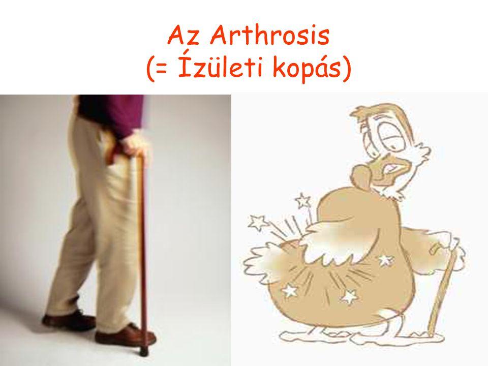 Az Arthrosis (= Ízületi kopás)