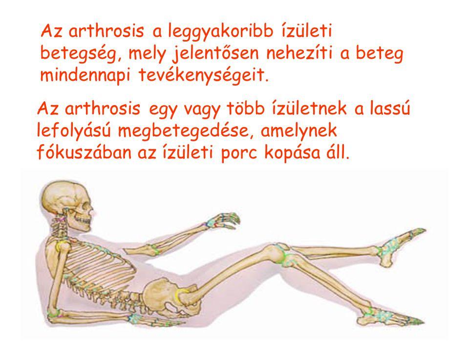 Az arthrosis a leggyakoribb ízületi betegség, mely jelentősen nehezíti a beteg mindennapi tevékenységeit.