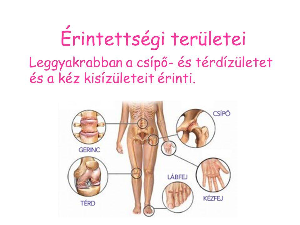 Érintettségi területei Leggyakrabban a csípő- és térdízületet és a kéz kisízületeit érinti.