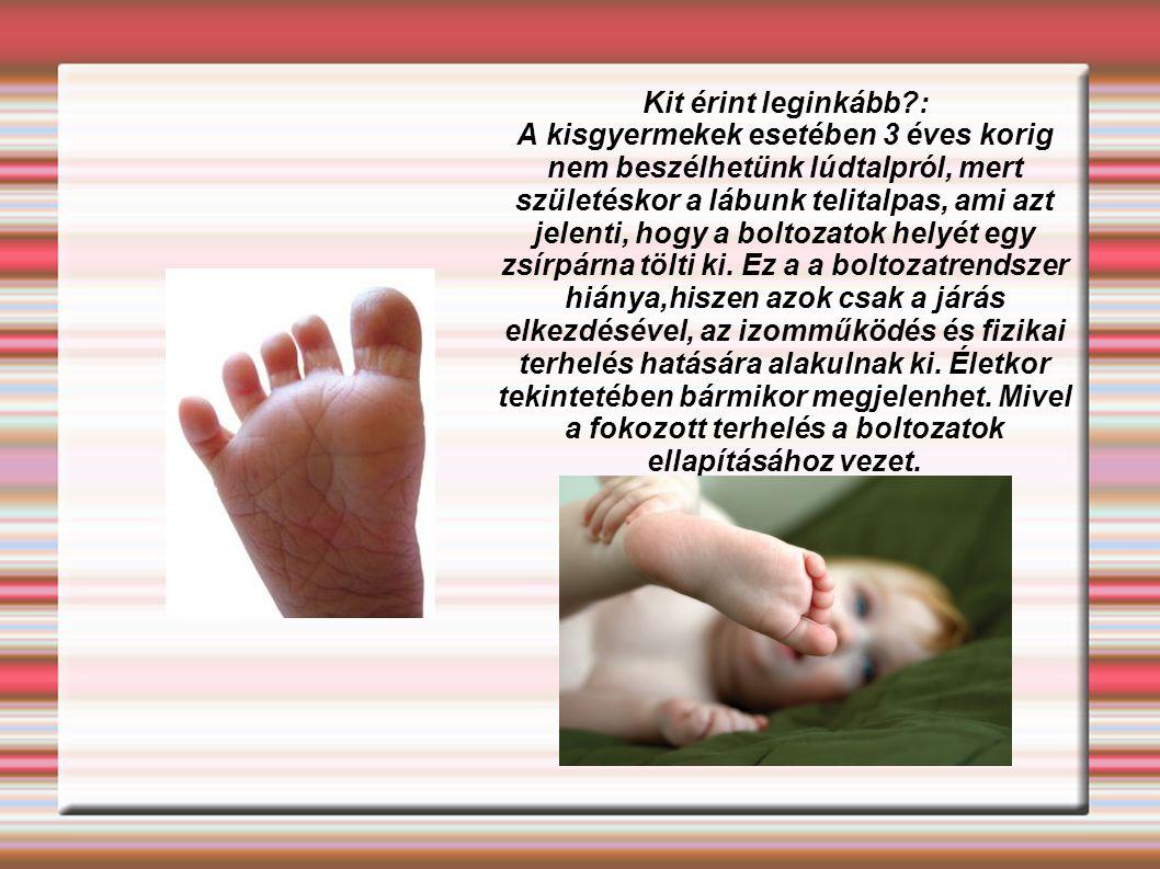 Kit érint leginkább?: A kisgyermekek esetében 3 éves korig nem beszélhetünk lúdtalpról, mert születéskor a lábunk telitalpas, ami azt jelenti, hogy a boltozatok helyét egy zsírpárna tölti ki.