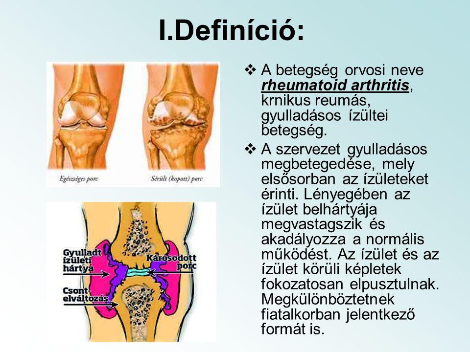 I.Definíció:  A betegség orvosi neve rheumatoid arthritis, krnikus reumás, gyulladásos ízültei betegség.  A szervezet gyulladásos megbetegedése, mel