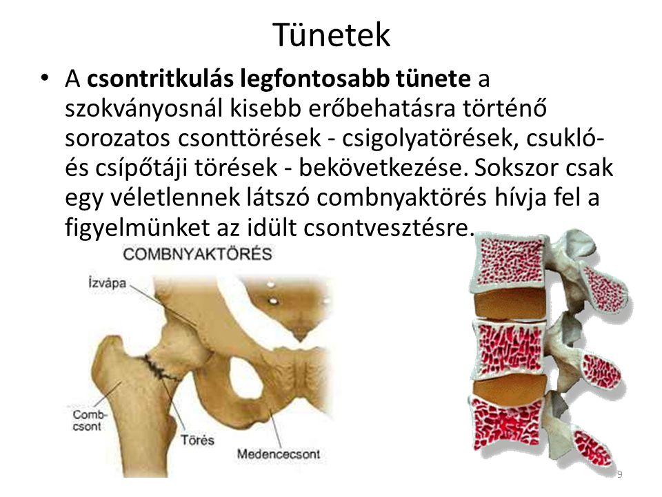 Öröklött és alkati tényezők: A maximálisan elérhető csonttömeget 80%-ban genetikai tényezők szabják meg. A sovány, törékeny testalkatú, különösen az 5