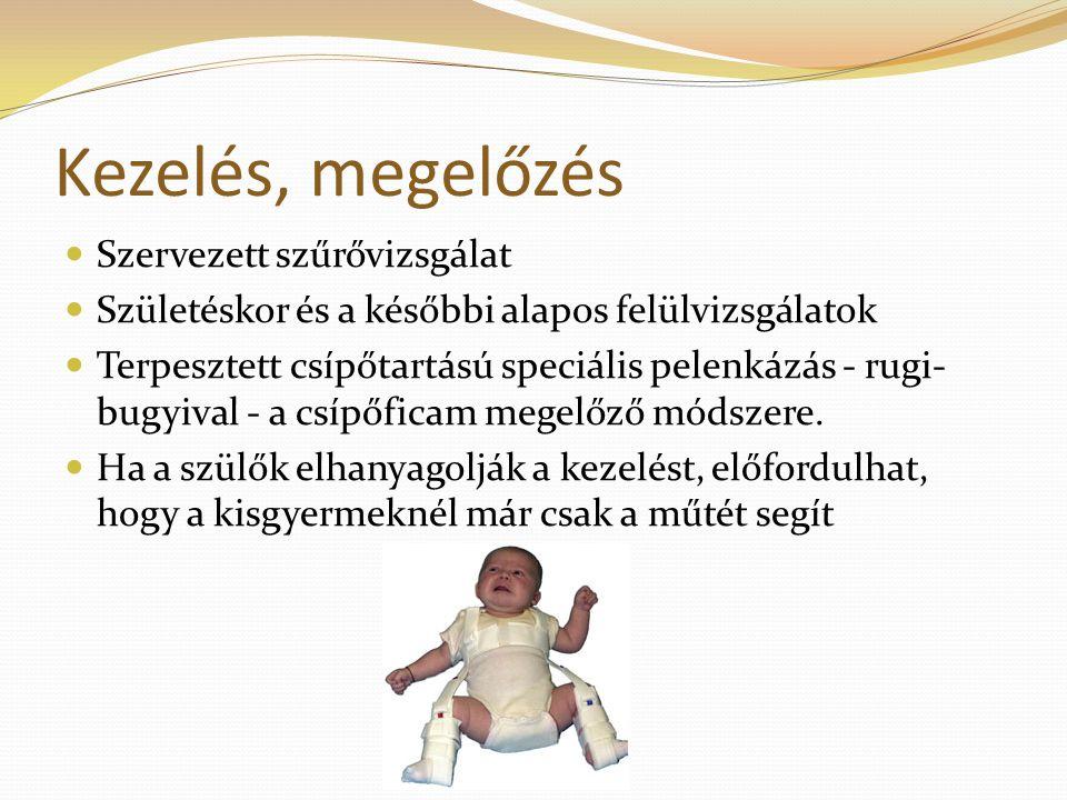 Kezelés, megelőzés Szervezett szűrővizsgálat Születéskor és a későbbi alapos felülvizsgálatok Terpesztett csípőtartású speciális pelenkázás - rugi- bugyival - a csípőficam megelőző módszere.