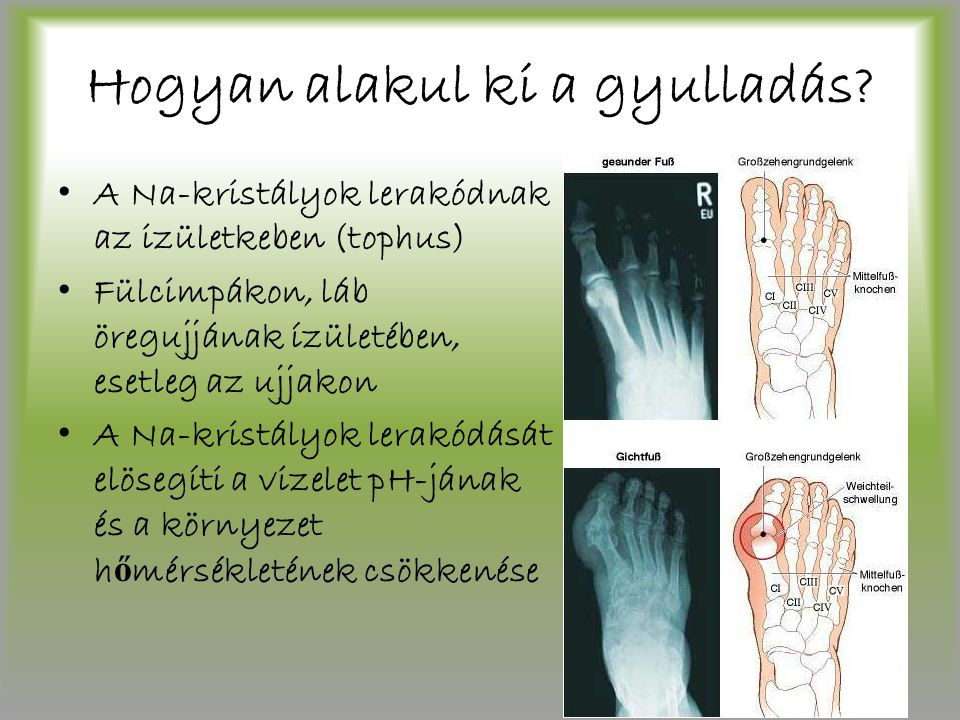 Hogyan alakul ki a gyulladás? A Na-kristályok lerakódnak az izületkeben (tophus) Fülcimpákon, láb öregujjának ízületében, esetleg az ujjakon A Na-kris