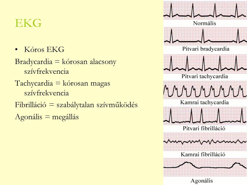 EKG Kóros EKG Bradycardia = kórosan alacsony szívfrekvencia Tachycardia = kórosan magas szívfrekvencia Fibrilláció = szabálytalan szívműködés Agonális