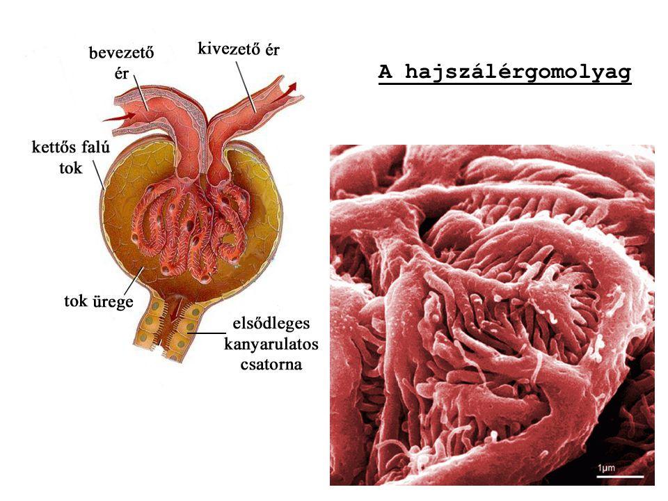 b) Művese-kezelés (dialízis) a) Hemodialízis (vér~) dialízisközpontokban hetente 3 x 4-5 óra A beteg vérét egy csövön keresztül a dializáló gépbe vezetik, majd onnan tisztán kerül vissza a szervezetbe.