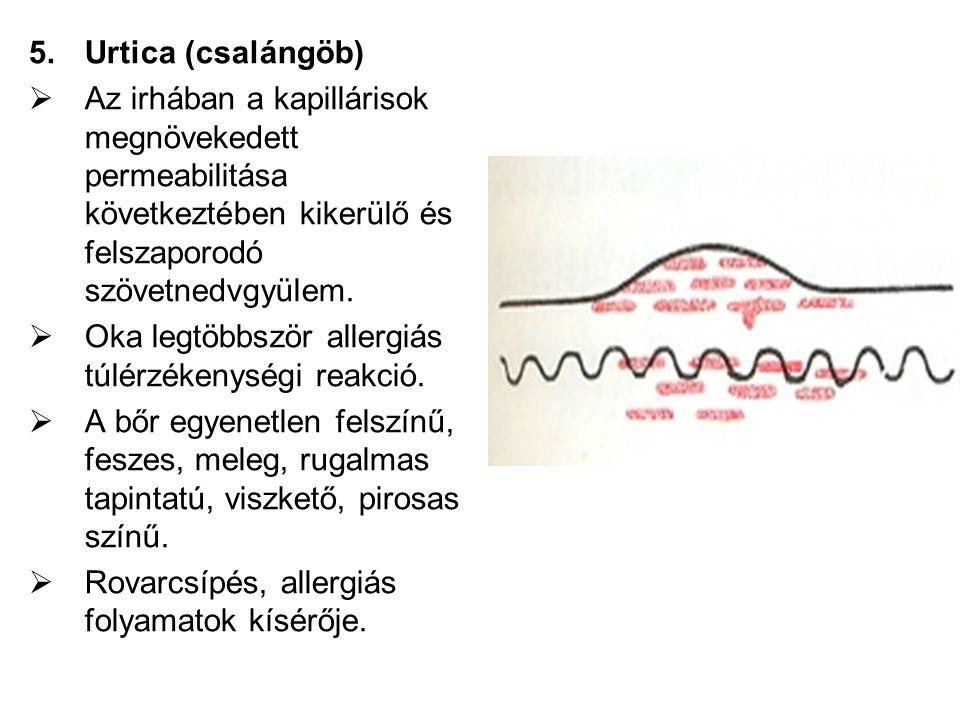 5.Urtica (csalángöb)  Az irhában a kapillárisok megnövekedett permeabilitása következtében kikerülő és felszaporodó szövetnedvgyülem.  Oka legtöbbsz