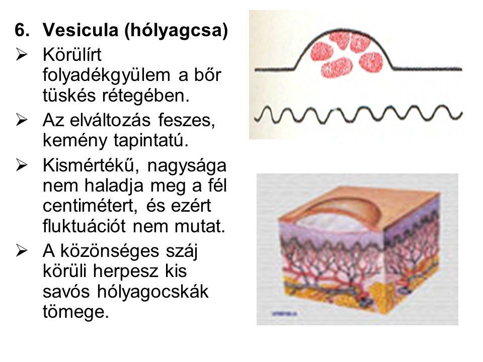 6.Vesicula (hólyagcsa)  Körülírt folyadékgyülem a bőr tüskés rétegében.  Az elváltozás feszes, kemény tapintatú.  Kismértékű, nagysága nem haladja