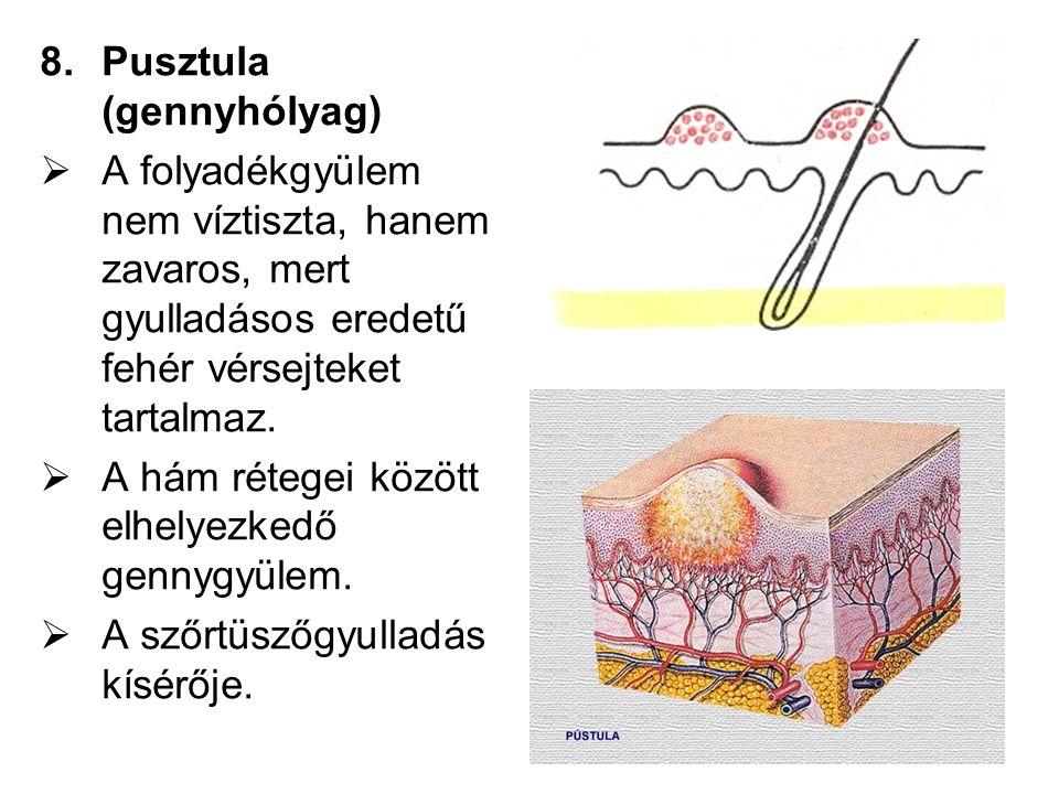 8.Pusztula (gennyhólyag)  A folyadékgyülem nem víztiszta, hanem zavaros, mert gyulladásos eredetű fehér vérsejteket tartalmaz.  A hám rétegei között