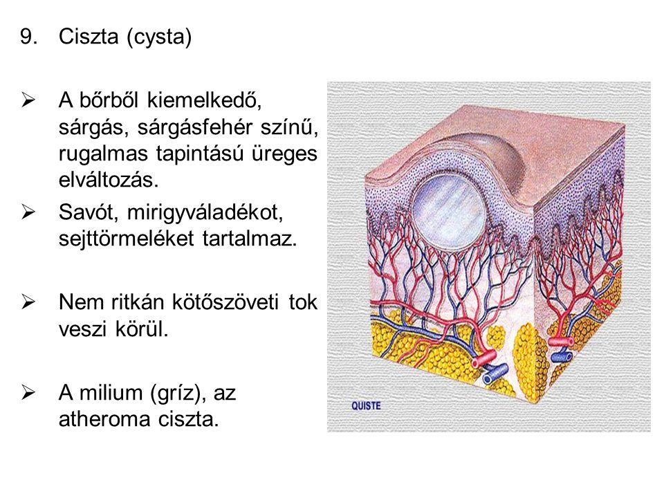 9.Ciszta (cysta)  A bőrből kiemelkedő, sárgás, sárgásfehér színű, rugalmas tapintású üreges elváltozás.  Savót, mirigyváladékot, sejttörmeléket tart