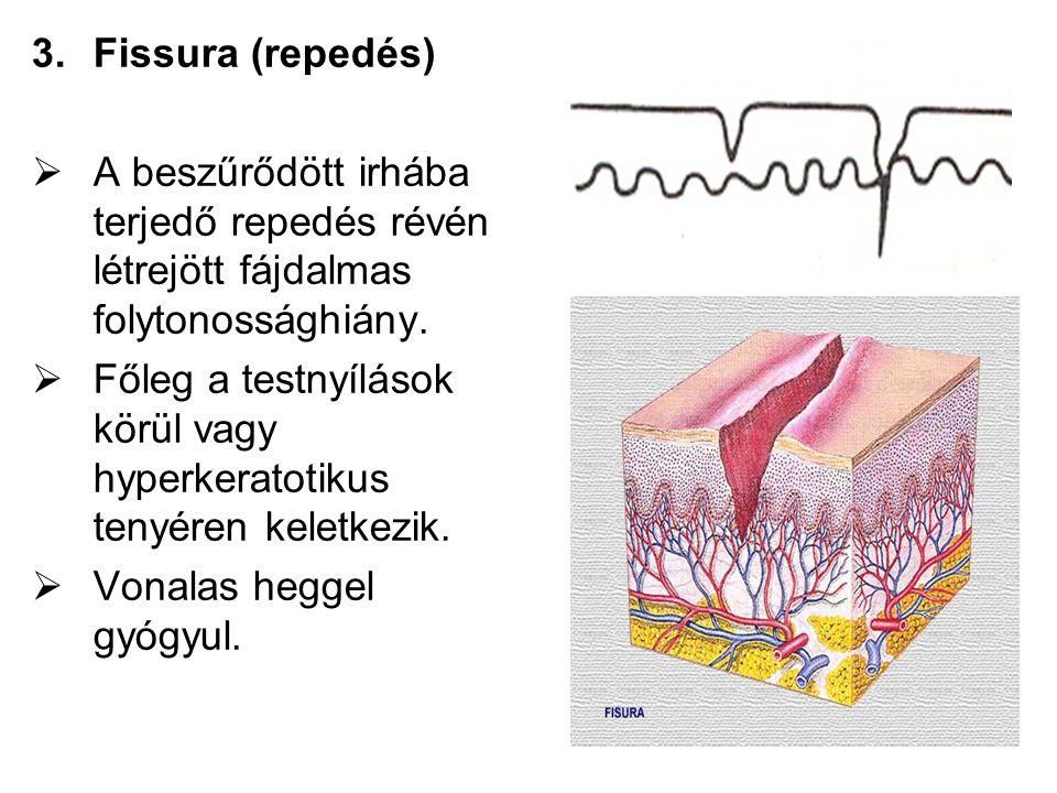 3.Fissura (repedés)  A beszűrődött irhába terjedő repedés révén létrejött fájdalmas folytonossághiány.  Főleg a testnyílások körül vagy hyperkeratot