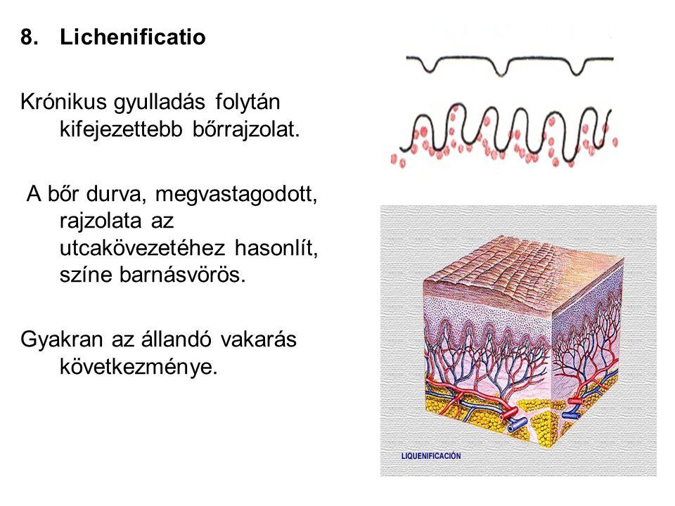 8.Lichenificatio Krónikus gyulladás folytán kifejezettebb bőrrajzolat. A bőr durva, megvastagodott, rajzolata az utcakövezetéhez hasonlít, színe barná