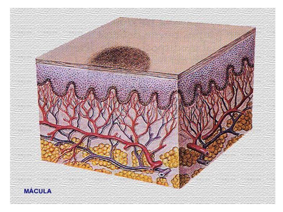 2.Excoriatio (hámhorzsolás) és erosio (hámfoszlás) Erősen viszkető bőrelváltozásoknál a krónikus vakarás (excoratio) következményeként a felhám sérül és kisebb-nagyobb hámfosztott, erősen nedvedző felületek (erosio) alakulnak ki.