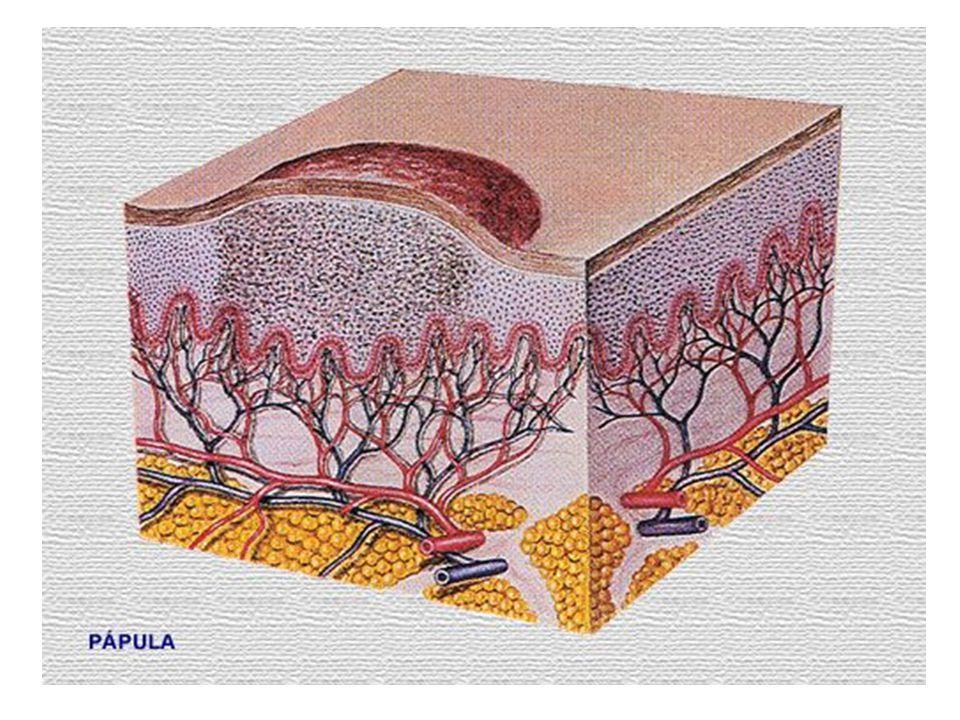 3.Tuber (göb)  A sejtes beszűrődés a bőr mélyebb rétegeire is kiterjed, és nagysága meghaladja a fél centimétert.