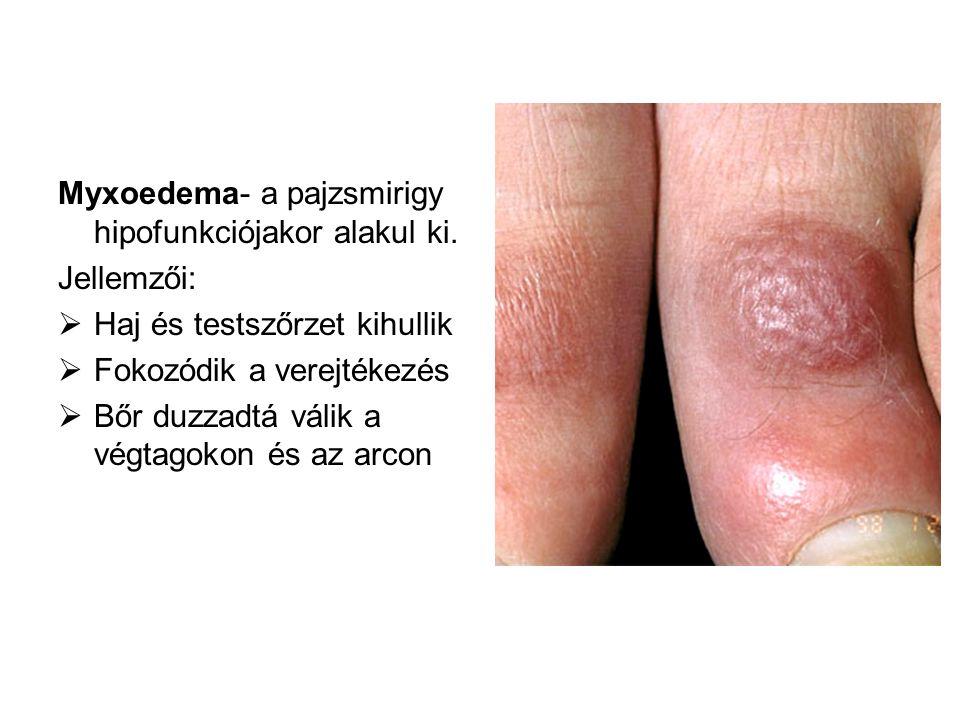 Myxoedema- a pajzsmirigy hipofunkciójakor alakul ki. Jellemzői:  Haj és testszőrzet kihullik  Fokozódik a verejtékezés  Bőr duzzadtá válik a végtag