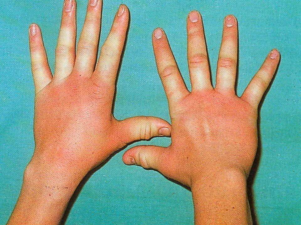  Meleg urticaria (urticaria e calore) Meleg fürdő vagy a testhőmérséklet emelkedésére keletkező urticaria.