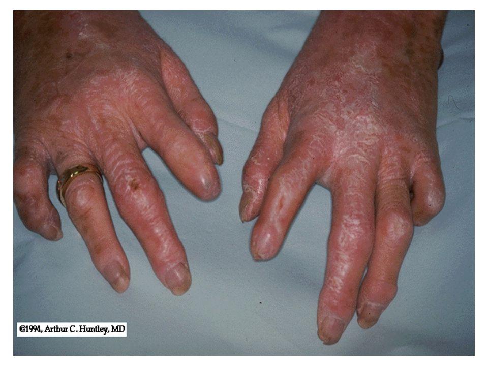 Scleroderma circumscriptum 1.Morphea Főleg a törzsre lokalizálódó, egyedülálló vagy multiplex, néhány centiméter átmérőjű, fehér színű, tömött elváltozások.