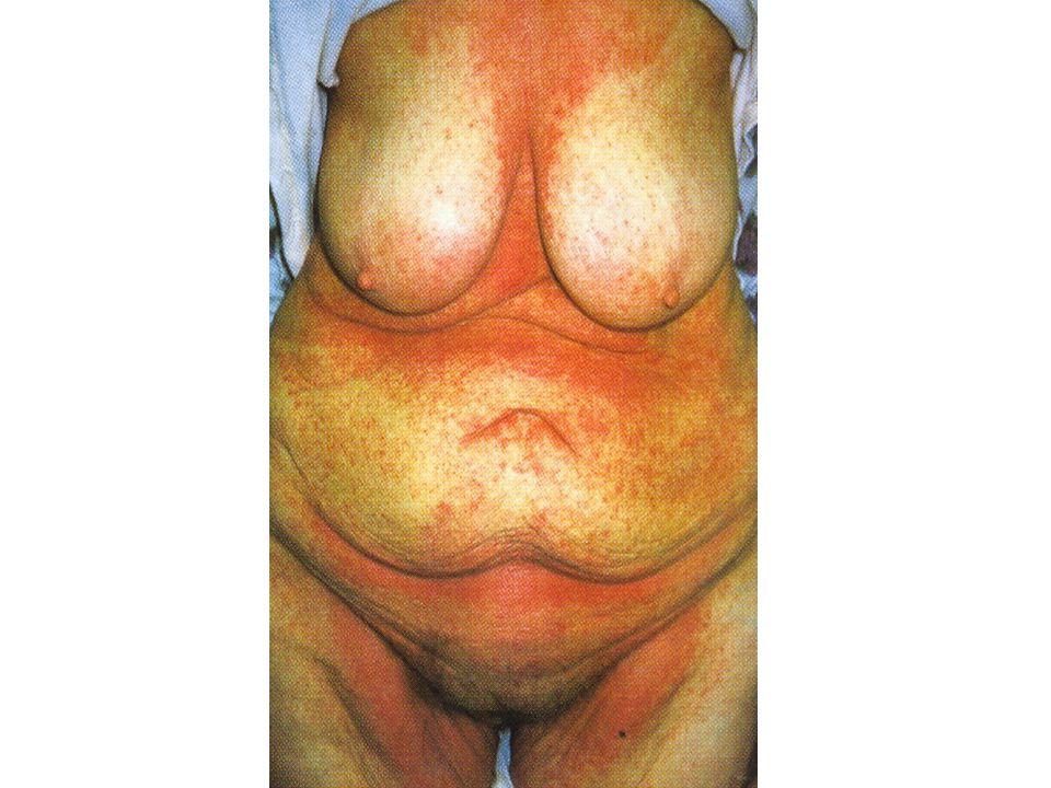 Hyperkeratotikus kéz- és lábekzema Főleg a tenyerekre, talpakra lokalizálódó, éles határú, enyhén gyulladt vöröses foltokkal jelentkezik, melyek sárgás szaruréteggel borítottak.