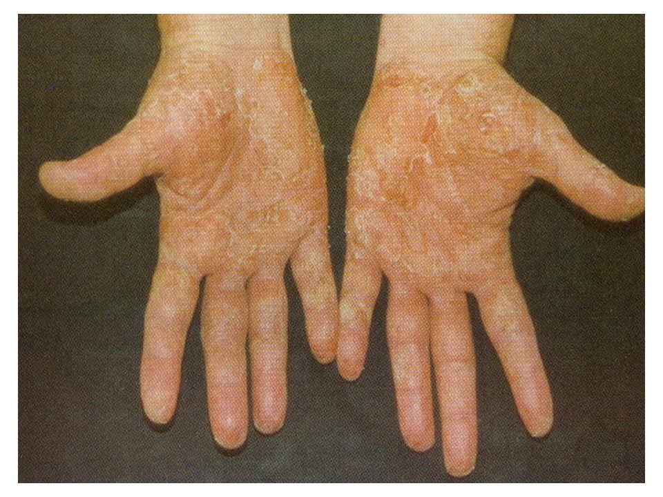 2.Krónikus allergiás kontakt dermatitis (CACD) A szenzibilizáló allergénnel történt ismételt találkozás során kialakuló, többségében szimmetrikusan elhelyezkedő, elmosódott határú, disszeminált papulovesikulákkal jelentkező, évekig fennmaradó, spontán gyógyulást általában nem mutató idült elváltozás.