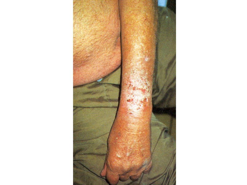 3.Dyshidrotikus ekzema Leggyakrabban tenyereken, ujjak oldalsó, hajlító felszínein, talpakon, apró majd összefolyó, feszes falú hólyagcsák formájában jelenik meg, melyek körül a bőr gyulladt, ödémás.