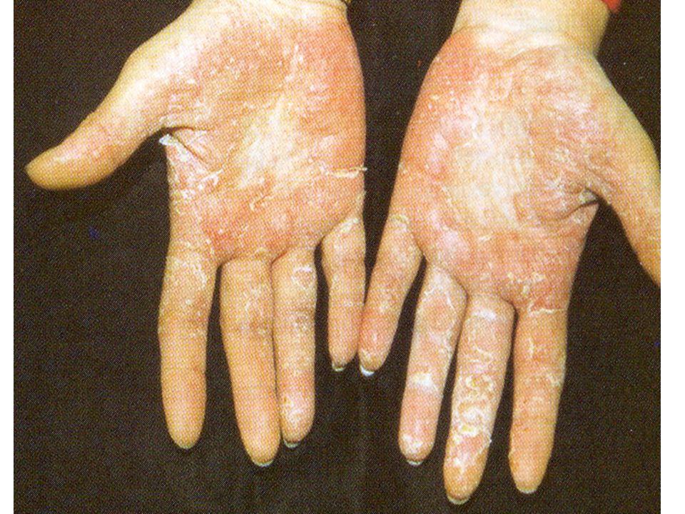 Fotoallergiás dermatitisek A biológiai életterünk legfőbb meghatározója a napfény bizonyos körülmények között ártalmas is lehet az emberre.