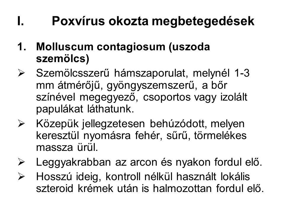 I.Poxvírus okozta megbetegedések 1.Molluscum contagiosum (uszoda szemölcs)  Szemölcsszerű hámszaporulat, melynél 1-3 mm átmérőjű, gyöngyszemszerű, a