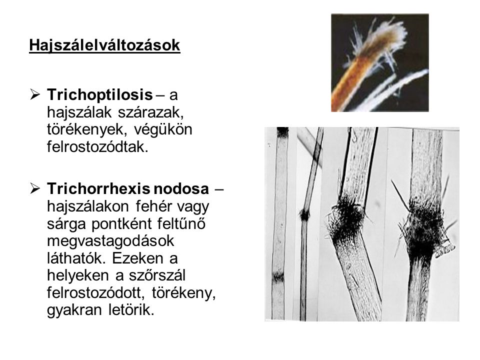Hajszálelváltozások  Trichoptilosis – a hajszálak szárazak, törékenyek, végükön felrostozódtak.  Trichorrhexis nodosa – hajszálakon fehér vagy sárga