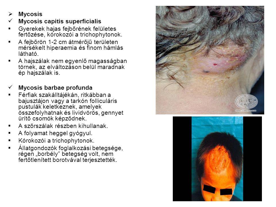  Mycosis Mycosis capitis superficialis  Gyerekek hajas fejbőrének felületes fertőzése, kórokozói a trichophytonok.  A fejbőrön 1-2 cm átmérőjű terü