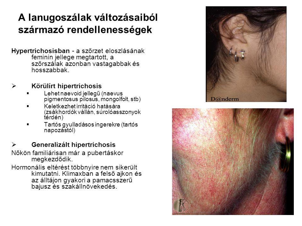  Hirsutismus- férfias típusú szőrzetnövekedés nőkön (alhason a köldökig háromszög alakban húzódó fanszőrzet, erőteljesebb szakáll, bajusz).