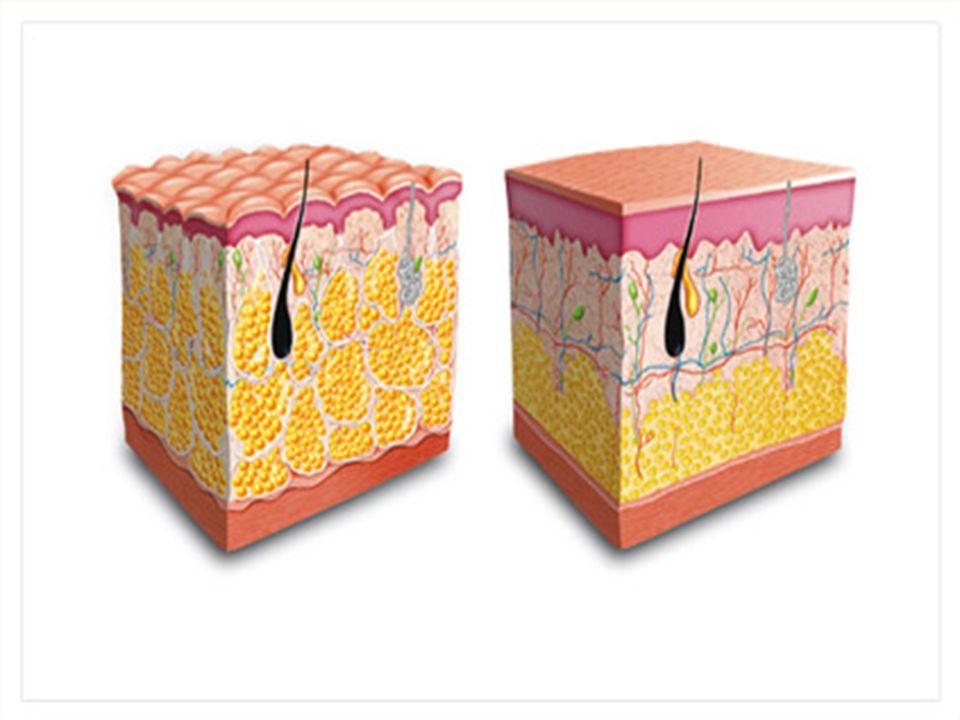 Endermologie Ez a módszer egy mély kötőszöveti, gépi feszesítő cellulitmasszázs.