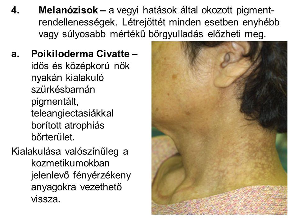 4.Melanózisok – a vegyi hatások által okozott pigment- rendellenességek.