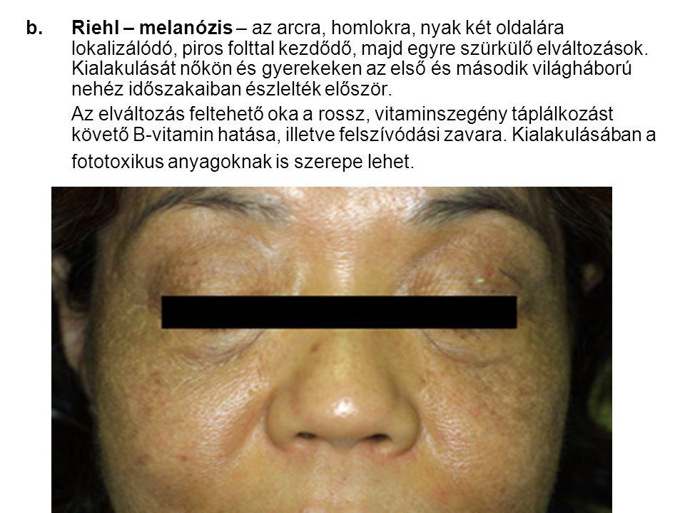b.Riehl – melanózis – az arcra, homlokra, nyak két oldalára lokalizálódó, piros folttal kezdődő, majd egyre szürkülő elváltozások.