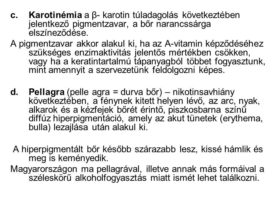 c.Karotinémia a β- karotin túladagolás következtében jelentkező pigmentzavar, a bőr narancssárga elszíneződése.