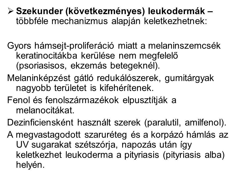  Szekunder (következményes) leukodermák – többféle mechanizmus alapján keletkezhetnek: Gyors hámsejt-proliferáció miatt a melaninszemcsék keratinocitákba kerülése nem megfelelő (psoriasisos, ekzemás betegeknél).