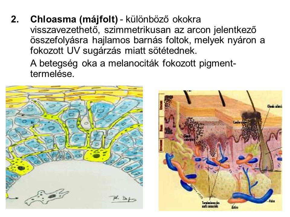 2.Chloasma (májfolt) - különböző okokra visszavezethető, szimmetrikusan az arcon jelentkező összefolyásra hajlamos barnás foltok, melyek nyáron a fokozott UV sugárzás miatt sötétednek.