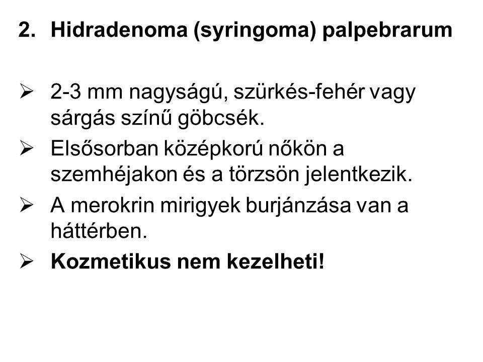 2.Hidradenoma (syringoma) palpebrarum  2-3 mm nagyságú, szürkés-fehér vagy sárgás színű göbcsék.