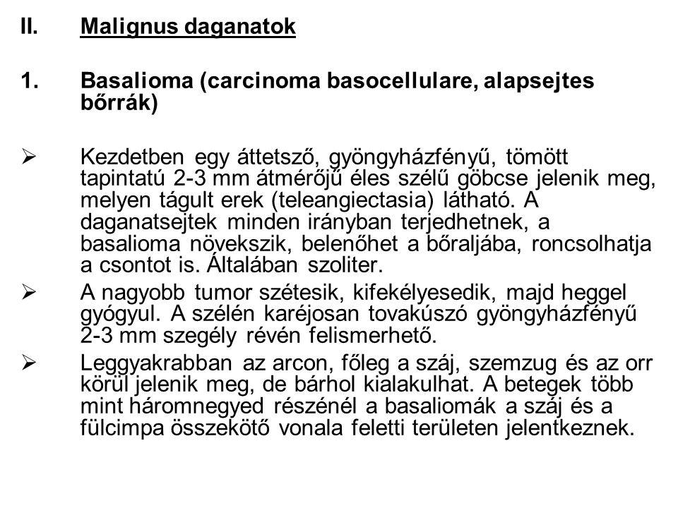 II.Malignus daganatok 1.Basalioma (carcinoma basocellulare, alapsejtes bőrrák)  Kezdetben egy áttetsző, gyöngyházfényű, tömött tapintatú 2-3 mm átmérőjű éles szélű göbcse jelenik meg, melyen tágult erek (teleangiectasia) látható.