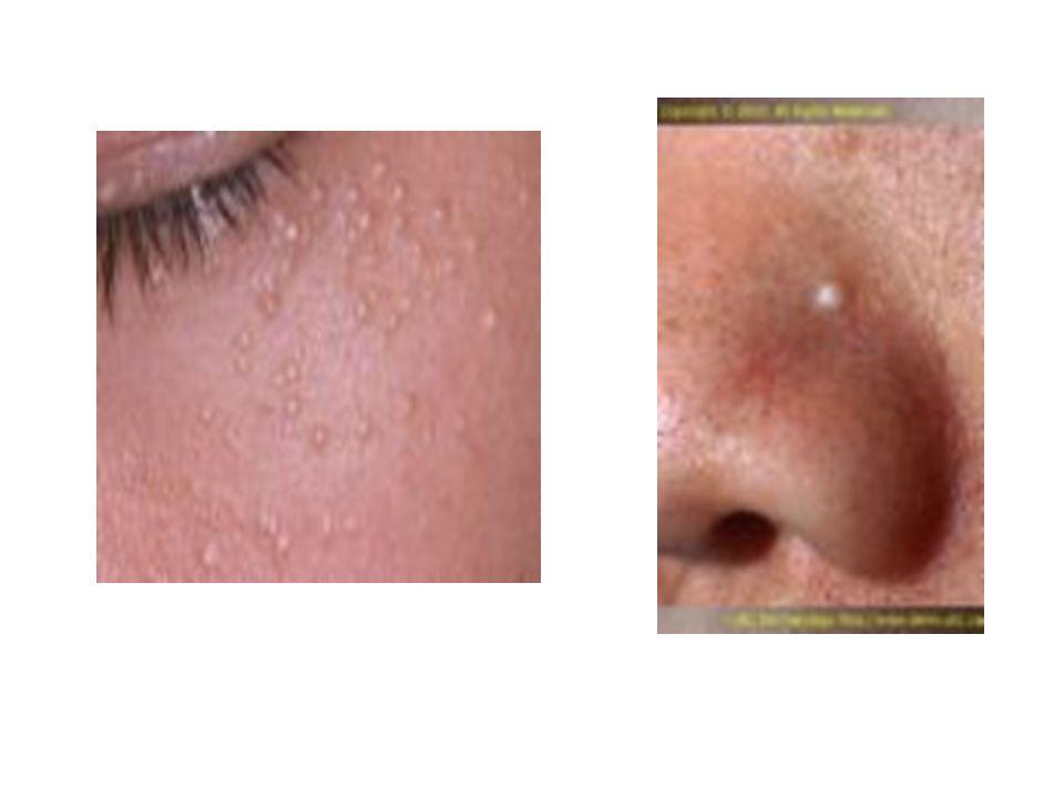  Kialakulásában lényeges a napsugárzás UV-B szerepe, 90%-ban a napfénynek kitett bőrterületeken alakul ki.