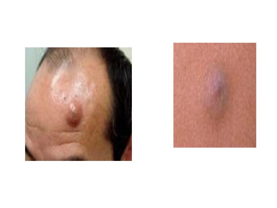 Általában:  50 70 %-ban ép bőrön jelentkezik  20%-ban lentigóból alakul ki  30%-ban pigmentált naevusból fejlődhet.