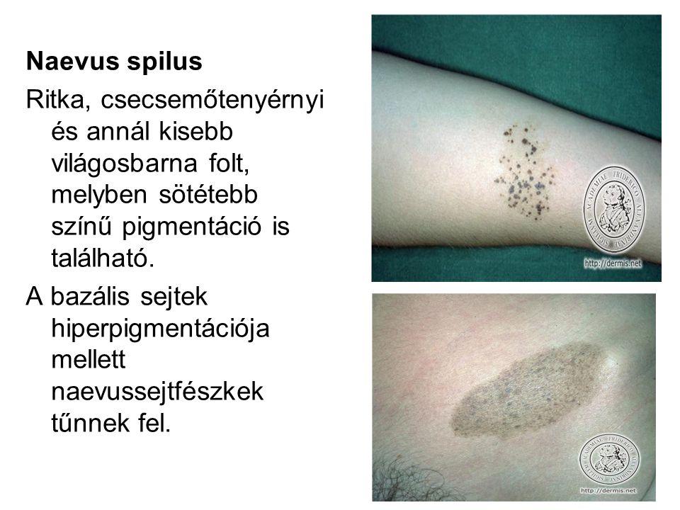 Naevus spilus Ritka, csecsemőtenyérnyi és annál kisebb világosbarna folt, melyben sötétebb színű pigmentáció is található. A bazális sejtek hiperpigme