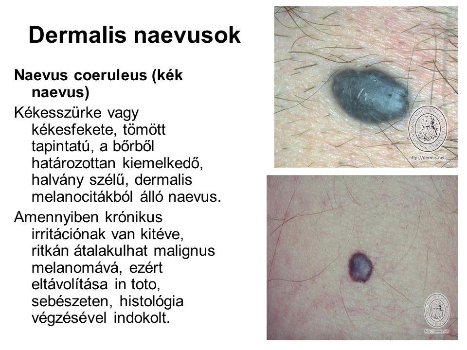 Dermalis naevusok Naevus coeruleus (kék naevus) Kékesszürke vagy kékesfekete, tömött tapintatú, a bőrből határozottan kiemelkedő, halvány szélű, derma