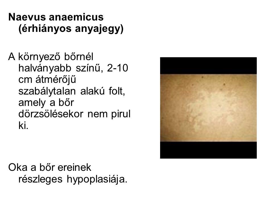 Naevus anaemicus (érhiányos anyajegy) A környező bőrnél halványabb színű, 2-10 cm átmérőjű szabálytalan alakú folt, amely a bőr dörzsölésekor nem piru