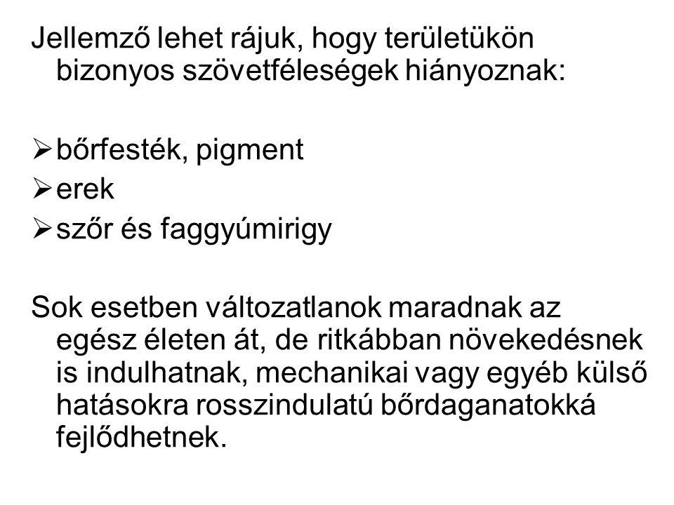 Festékes naevusok 1.