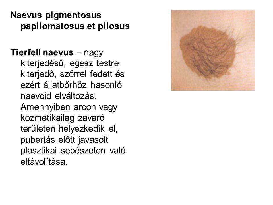 Naevus pigmentosus papilomatosus et pilosus Tierfell naevus – nagy kiterjedésű, egész testre kiterjedő, szőrrel fedett és ezért állatbőrhöz hasonló na