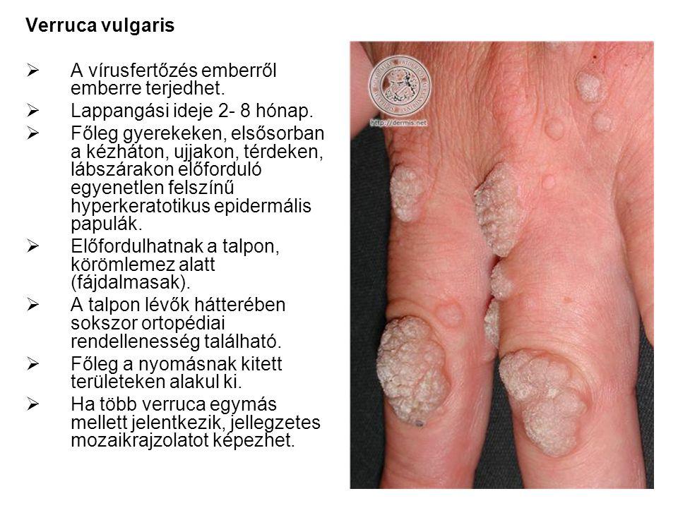 Verruca vulgaris  A vírusfertőzés emberről emberre terjedhet.  Lappangási ideje 2- 8 hónap.  Főleg gyerekeken, elsősorban a kézháton, ujjakon, térd