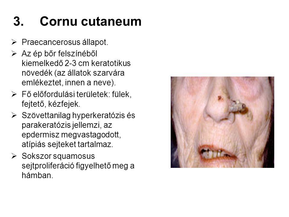 3.Cornu cutaneum  Praecancerosus állapot.  Az ép bőr felszínéből kiemelkedő 2-3 cm keratotikus növedék (az állatok szarvára emlékeztet, innen a neve